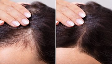 Hair Loss Treatment Sonoma County, CA