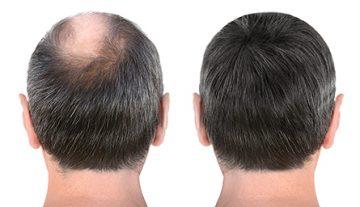 Hair Restoration Petaluma, CA