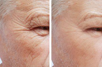 Wrinkle Reduction Petaluma, CA