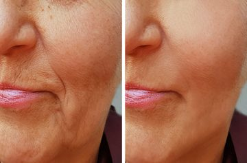 Wrinkle Removal Sonoma County, CA